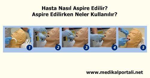 hasta-nasil-aspire-edilir-neler-kullanilir-malzemeler-nelerdir-aspirasyon-cihazi