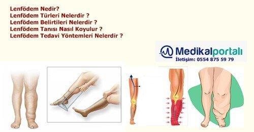 lenfodem-nedir-turleri-belirtileri-nedenleri-nelerdir-neden-olur-nasil-tedavi-edilir-yontemleri-riskleri-nelerdir-birincil-ikincil-primer-ayakta-lenfodem