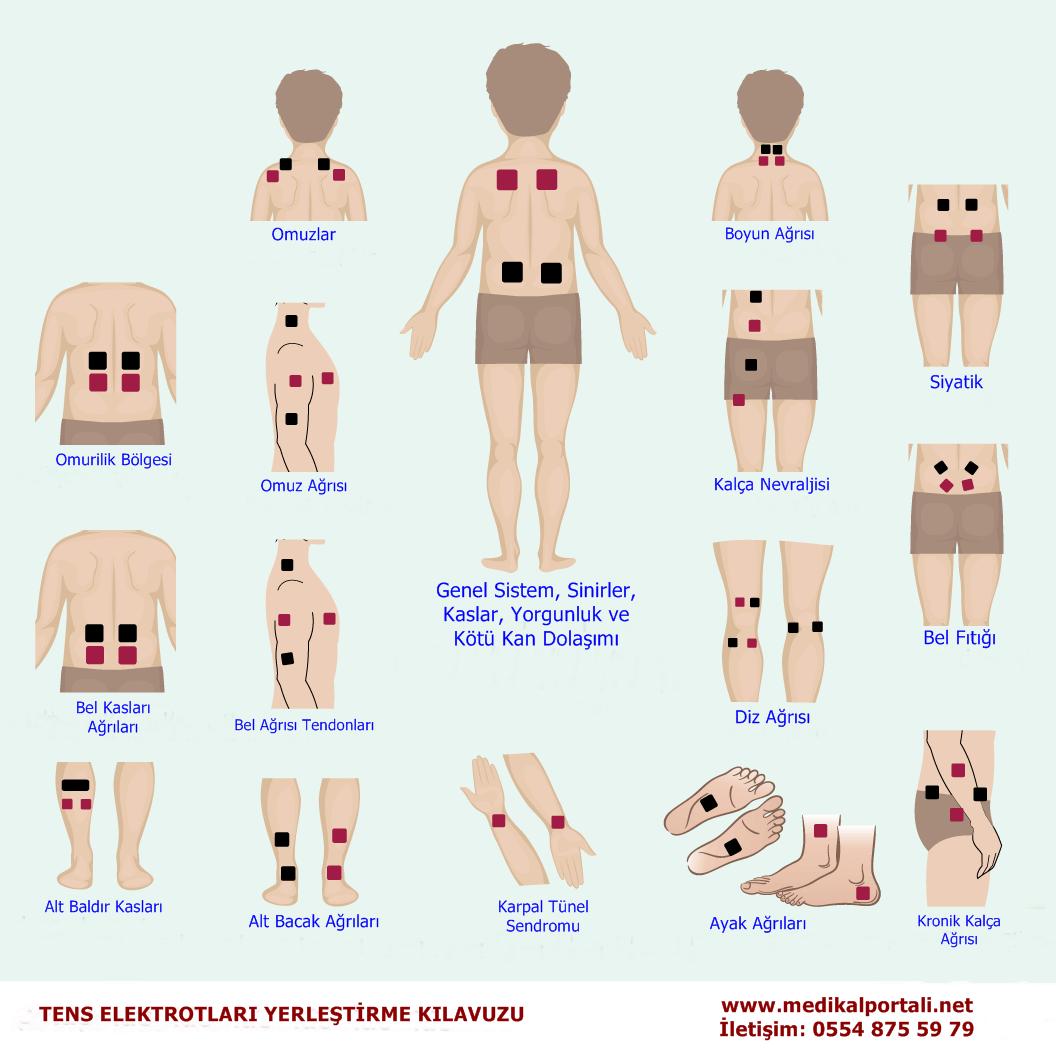 fizik tedavi tens cihazı ne işe yarar, tens cihazı tavsiye, tens cihazı uygulama noktaları, tens cihazı istanbul, tens cihazı ayarları, tens cihazı ve ayak masaj terapisti baş diz sırt ağrısı boyun fıtığı boyun düzleşmesi blok diyagramı nasıl bağlanır, compex comfy tens cihazı, tens cihazı etkileri