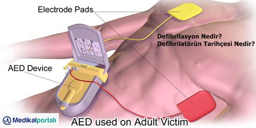 defibrilasyon-nedir-ne-zaman-uygulanir-kimlere-nasil-yapilir-kullanilir-defibrilatorun-amaci-nedir