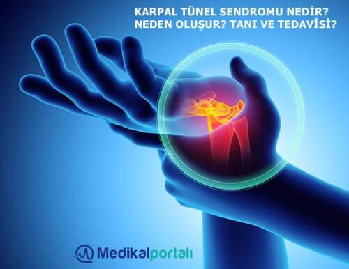 el-bilek-hastaligi-karpal-tunel-sendromu-nedir-medikal-tedavisi-tekrarlarmi-nasil-anlasilir-belirtileri-ne-kadar-zamanda-iyilesir