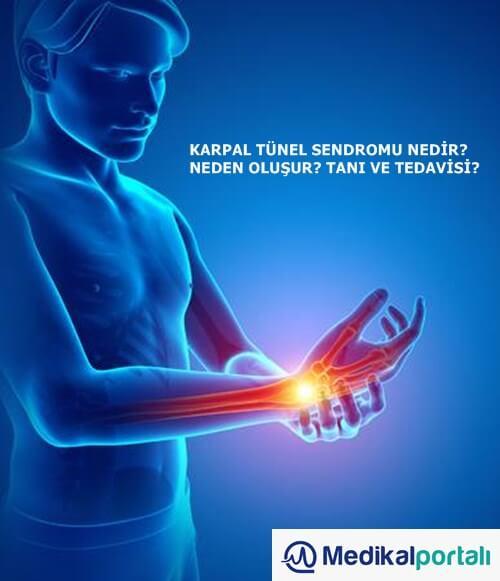 karpal-tunel-sendromu-el-bilek-meslek-hastaligi-nedir-neden-olusur-tedavi-edilirmi-hastalik-geceröi-evde-egzersiz-uygulamalari