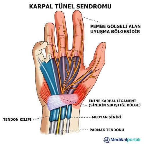 karpal-tunel-sendromu-nedir-belirtileri-nelerdir-neden-olusur-tedavisi-el-bilek-hastaligi-egzersizleri-bandaji-ateli-degerlendirme-fizik-tedavi-hareketleri-gece-ateli-nasil-gecer