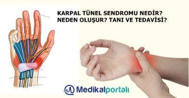 karpal-tunel-sendromu-nedir-meslek-hastaligi-belirtileri-nelerdir-neden-olusur-tedavisi-el-bilek-hastaligi