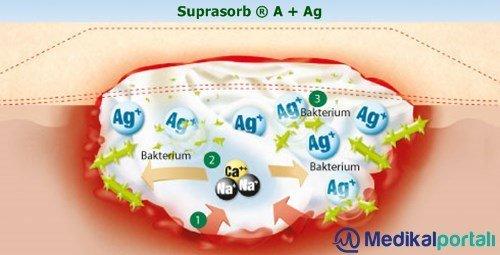 gumus-yara-ortusu-nedir-ne-ise-yarar-yara-bakiminda-nasil-kullanilir-ozellikleri-nelerdir-suprasorb-ag