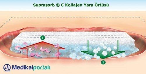 kollajen-yara-ortusu-suprasorb-c-urun-ozellikleri-ne-ise-yarar-nasil-nerede-kullanilir-uygulamasi-satin-alinir-fiyatlari
