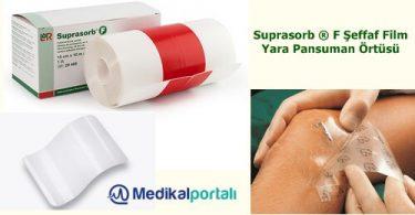steril-su-gecirmez-seffaf-film-yara-ortusu-dovme-yara-koruyucu-suprasorb-f-urun-ozellikleri-uygulama-kullanim-alanlari-fiyatlari-satiş-noktalari
