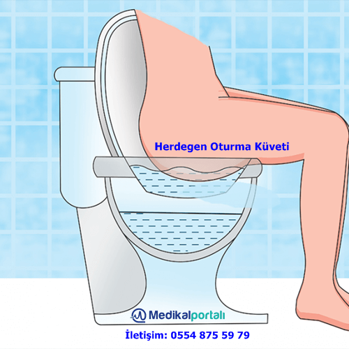 Hemoroid Nedir, Neden Oluşur ve Herdegen Hemoroid Küveti Ne İşe Yarar? 2