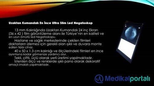 Negatoskop, Işıklı Röntgen Panosu Modelleri ve Fiyatları 7